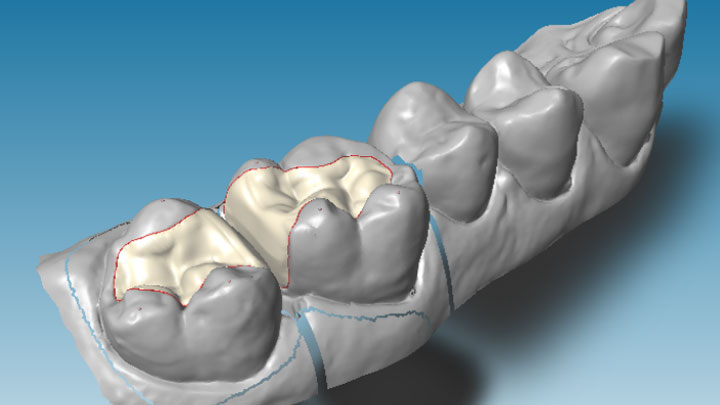 dental-wings-dwos-cad-software-onlay-design-lightbox